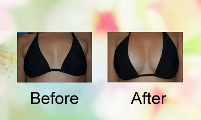 Breast Actives Customer Testimonials
